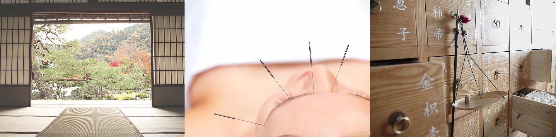 electro-acupunctuur